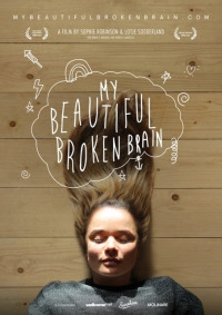 My Beautiful Broken Brain (2014)
